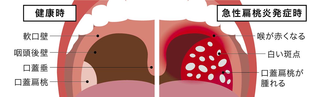 コロナの可能性 扁桃腺の腫れ